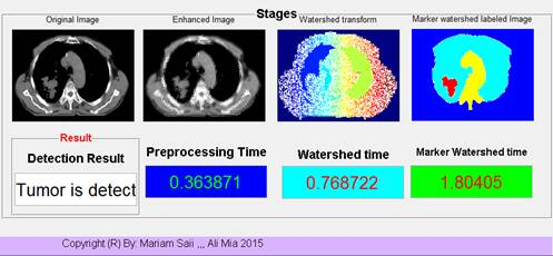 Lung Detection and Segmentation Using Marker Watershed and Laplacian